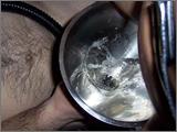 Eine klare Flüssigkeit fließt in Metalltrichter über einem nacktem männlichen Oberkörper
